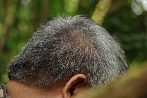 Profesyonel Saç Ekimi Aşamaları