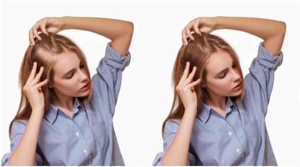 Kadınlarda Saç Ekimi Nasıl Yapılır?